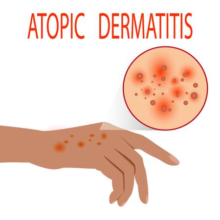 Atopic dermatitis health,  medical,  skin,  pain,  dermatitis,  eczema. Foto de archivo - 94113395