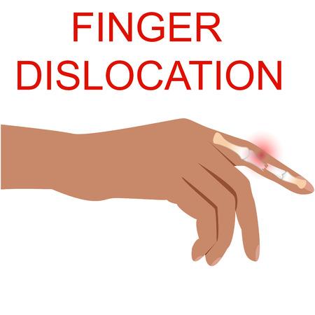 Finger Dislocation human medical  organ vector illustration