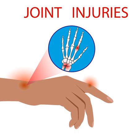 Finger Dislocation human medical organ vector illustration. Çizim