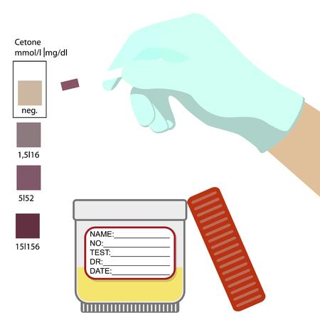 Test to acetone health,  medical,  medicine,  sample,  strip,  test.