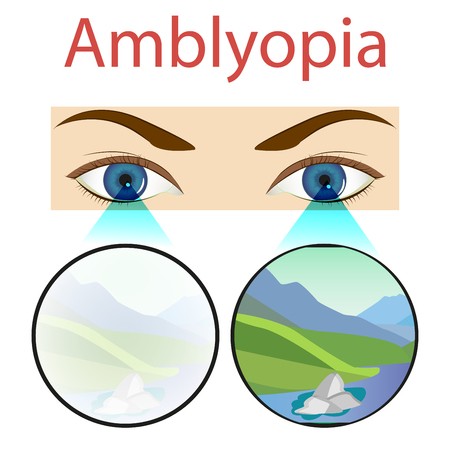 Amblyopia design,  white,  health,  care,  medical,  nobody. vector 일러스트