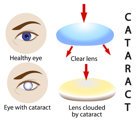 Cataract health science, medical, eye, vision, lens and surgery vector