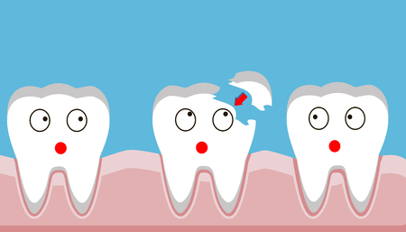 tooth fracture, filling, teeth, trauma, vector illustration.