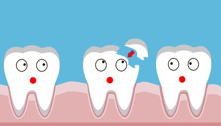 złamanie zęba, wypełnienie, zęby, uraz, ilustracja wektorowa.