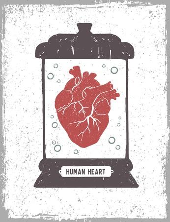 Hand getekend getextureerde poster met menselijk hart in een medische pot vectorillustraties. Stock Illustratie