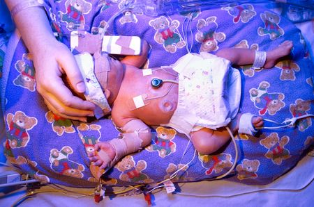 intensive: Premature baby boy, born six & half weeks premature, in hospital Neo Natal Intensive Care Unit, undergoing phototherapy with ultra violet lighting to treat Jaundice condition
