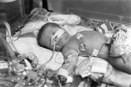 Premature baby boy delivered by Caesarean section, in Neo Natal Intensive Care Ward at Hospital photo