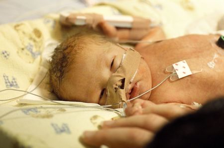 Premature baby boy delivered by Caesarean section, in Neo Natal Intensive Care Ward at Hospital Stock Photo - 5106656