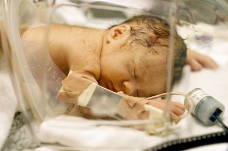 bebe enfermo: Beb� prematuro por ces�rea, en el interior de Humidicrib