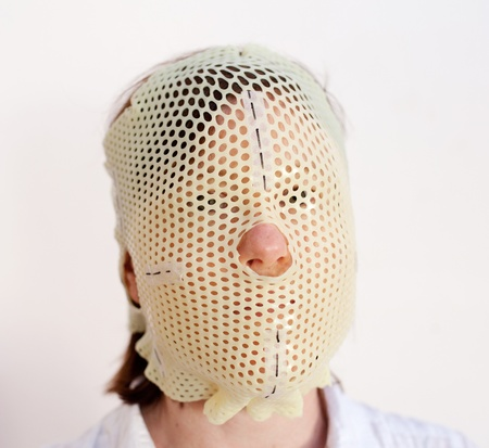 Female patient wearing a custom made Thermoplastic Radiotherapy Mask Stock Photo - 10532429