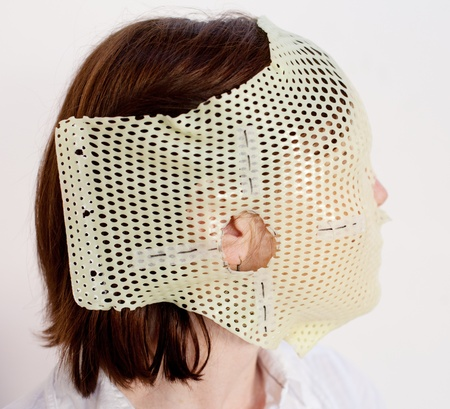 radiotherapy: Female patient wearing a custom made Thermoplastic Radiotherapy Mask