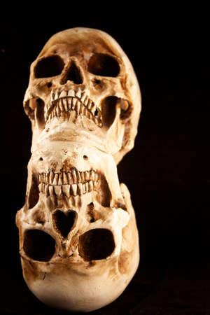 두 인간의 두개골 위에 쌓인 서로 검정색 배경. 스톡 콘텐츠