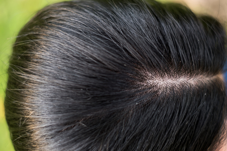 women head with dandruff Caused by the problem of dirty. Or caused by skin disease or Seborrheic Dermatitis. It has white scaly and it will cause itch. Stock Photo