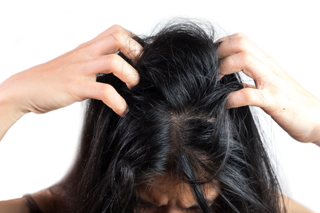 women head with dandruff Caused by the problem of dirty. Or caused by skin disease or Seborrheic Dermatitis. It has white scaly and it will cause itch.