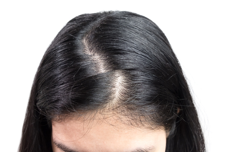 women head with dandruff Caused by the problem of dirty. Or caused by skin disease or Seborrheic Dermatitis. It has white scaly and it will cause itch. 版權商用圖片