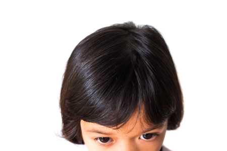 closeup asian girl head scratches caused by diseases of the scalp of children. it is lice and fungus on the scalp. cause itching and dirt. Shampoo product and medicine concept. Stockfoto