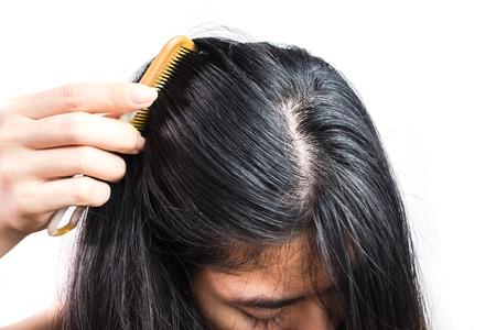 women head with dandruff Caused by the problem of dirty. Or caused by skin disease or Seborrheic Dermatitis. It has white scaly and it will cause itch. Product Concepts Scalp Care and Hair Care
