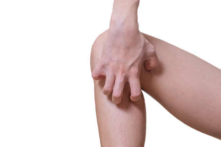 Young women develop rash on the legs Allergy symptoms He uses his hands to scratch the rash. on White background and clipping path.