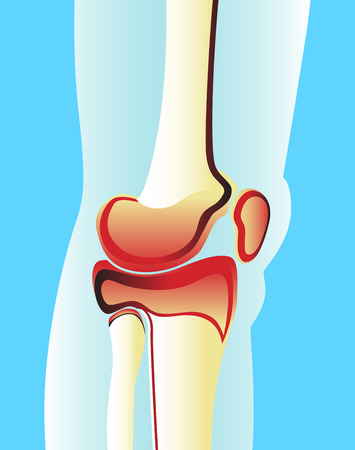 rheumatism: Illustration of a knee joint