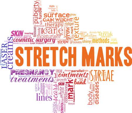 Stretch marks vector illustration word cloud isolated on a white background.