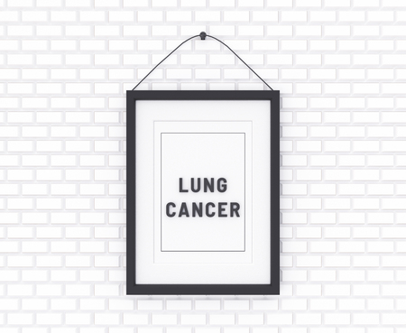 Lung Cancer written on a white background. Medicine concept. 3D Illustration.