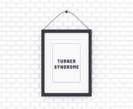 Turner syndrome written on a white background. Medicine concept. 3D Illustration. Reklamní fotografie