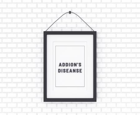 Addisons Diseanse written on a white background. Medicine concept. 3D Illustration. Reklamní fotografie