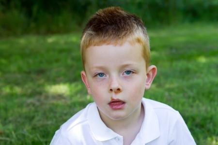 sores: Giovane ragazzo che soffriva di una malattia della pelle impetigine