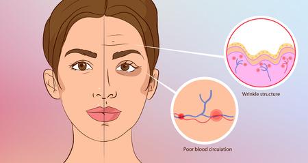 Vorzeitige Falten. Kosmetologie. Alterung der Haut, Prellungen unter den Augen