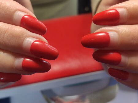 Female hand with regrowth shellac manicure in two months after application, need in correction Imagens