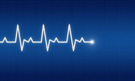 pulsating: illustration of EKG trace on blue background