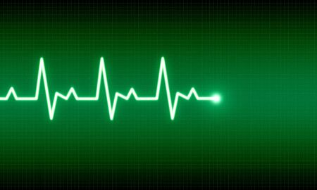 pulsating: illustration of EKG trace on green background