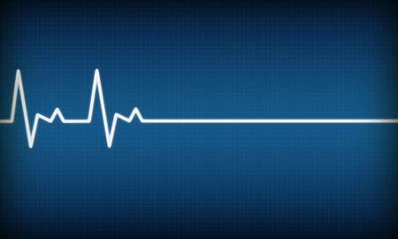 illustration of EKG trace on blue background illustration