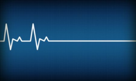 ekg: illustration of EKG trace on blue background