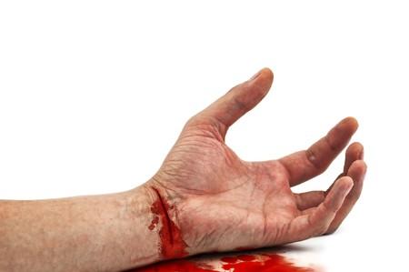 herida: mano sangrienta aislado en blanco