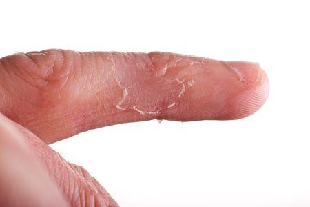 rash: primer del eczema en el dedo masculino con la peladura de la piel Foto de archivo