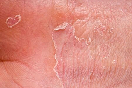 eczema on male hand with skin peeling photo