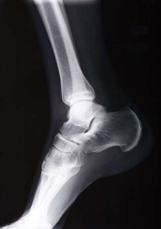 male human ankle xray picture photo