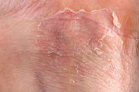eczema peeling macro on male grip skin photo