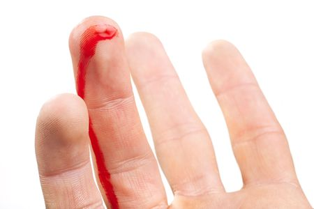 bleeding: wounded finger with blood dripping isolated on white Stock Photo