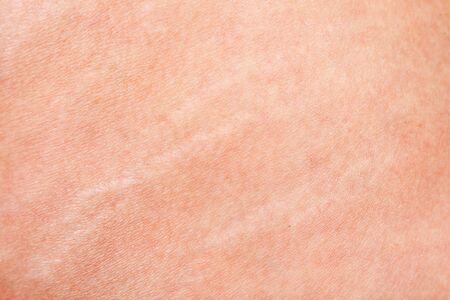 stretch marks closeup on mature woman skin Stock Photo