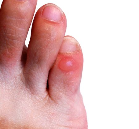 wound: Blister on little toe of right foot Stock Photo