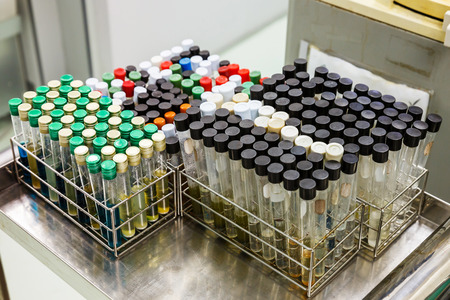 laboratory labware: Close up dirty test tubes in racks on stainless steel table Stock Photo