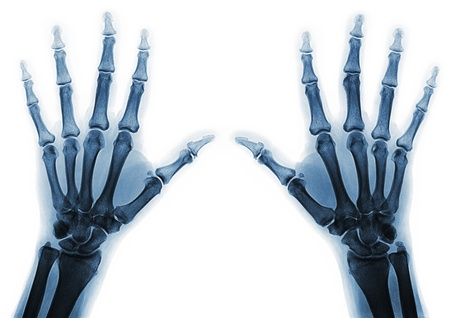 anatomy x ray: X-rays of hands of an adult man with visible damage