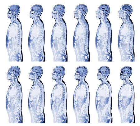 resonancia magnetica: Imagen de resonancia magnética verdadero completo la parte superior del cuerpo humano
