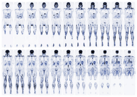 spinous: Complete real MRI scan of the human body, from the front and back Stock Photo