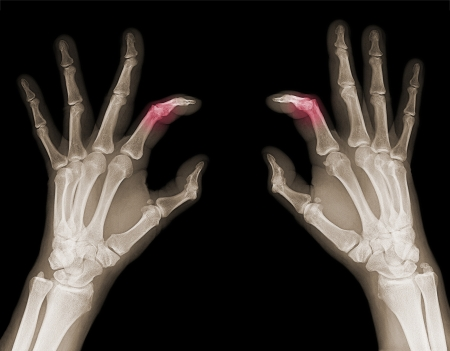 X-rays of hands of an adult man with visible damage photo