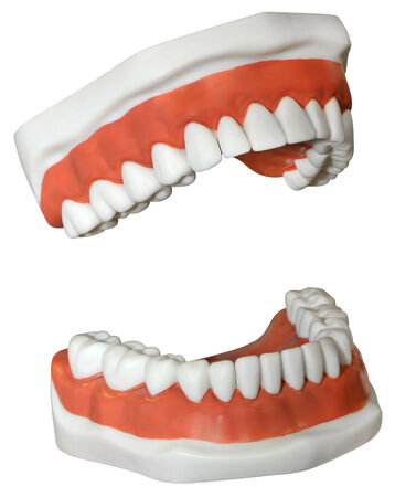 denture: New medical Dentures isolated on a white background  Stock Photo
