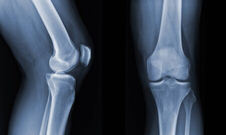 X-ray knee radiograph show state of injury