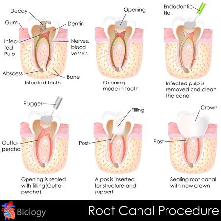 procedure: Root Canal procedura